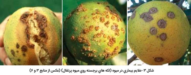 علایم بیماری شانکر مرکبات در میوه (لکه های برجسته روی میوه پرتقال)
