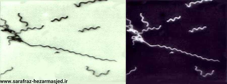 تصویر عامل بیمارگر بیماری استابورن مرکبات