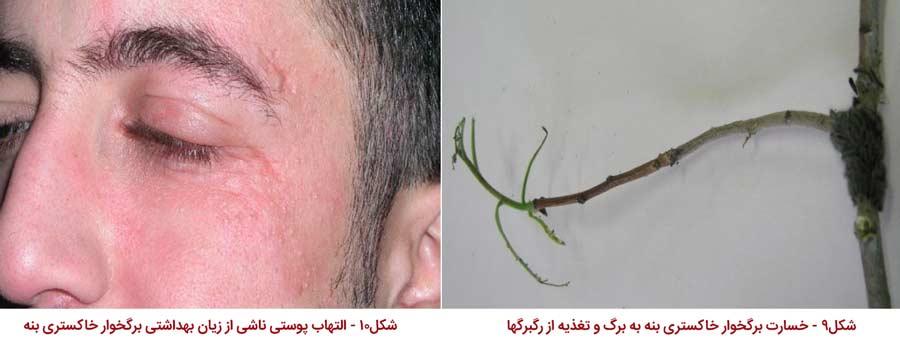 مشکلات و حساسیت پوستی ناشی از تماس با پروانه برگخوار خاکستری پسته